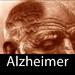 HD ALZHEIMER espanol